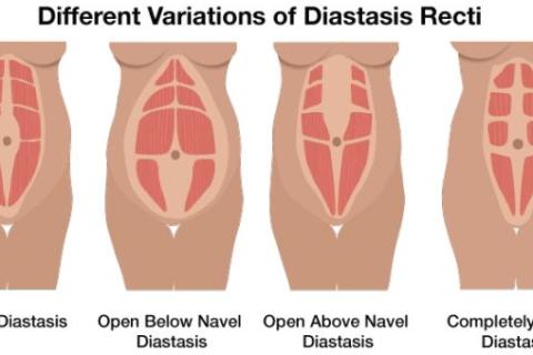 Diastasis Variations